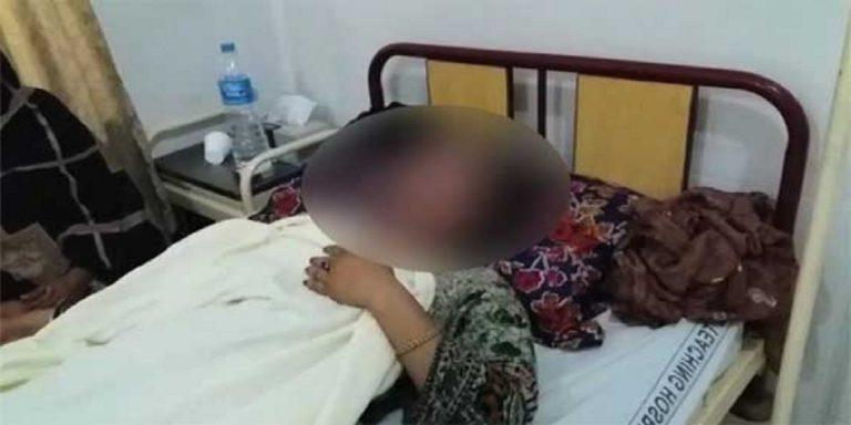 Girl injured in Kohat acid attack